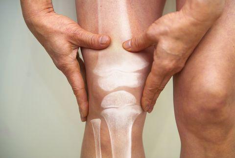 x ray of knee   osteoarthritis and rheumatoid arthritis