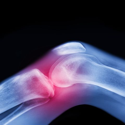 X-ray of knee with sports injury