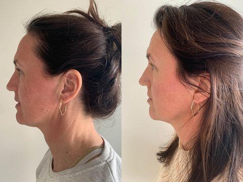 rebecca strooper voor en na het testen van the solution van oslo skin lab