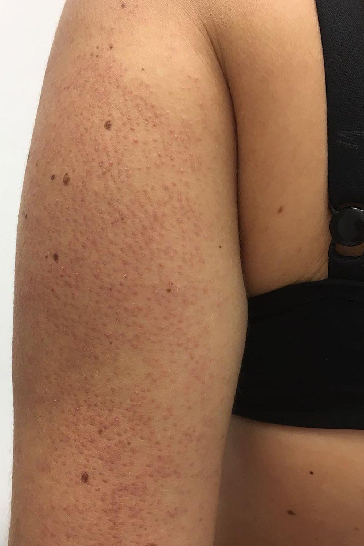 Tiny black spots on skin itchy