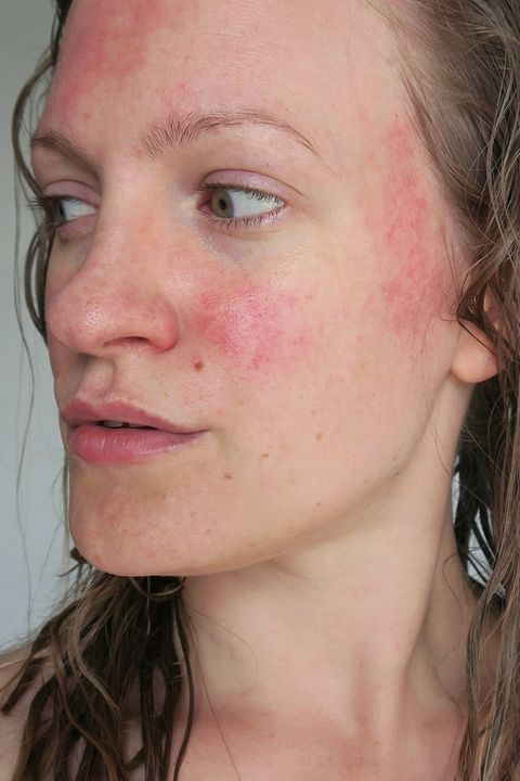 red dry skin patch on chin