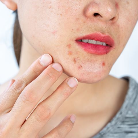 red spots on skin causes and treatments