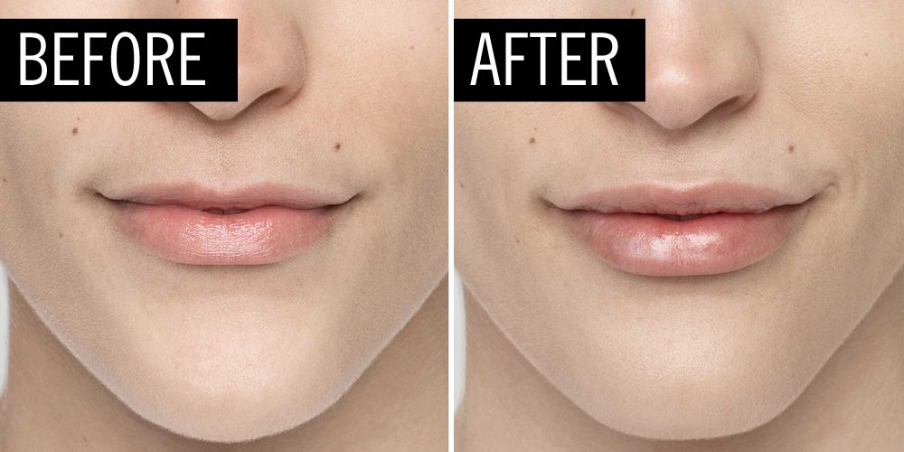 how to stop resin lips