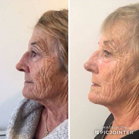 Anti Aging Treatments To Get Rid Of Under Eye Wrinkles