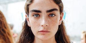 Facial Hair Removal