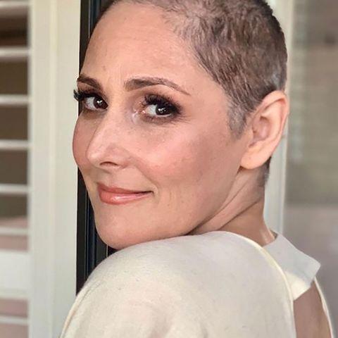 Ricki Lake talks hair loss, shows bald photos