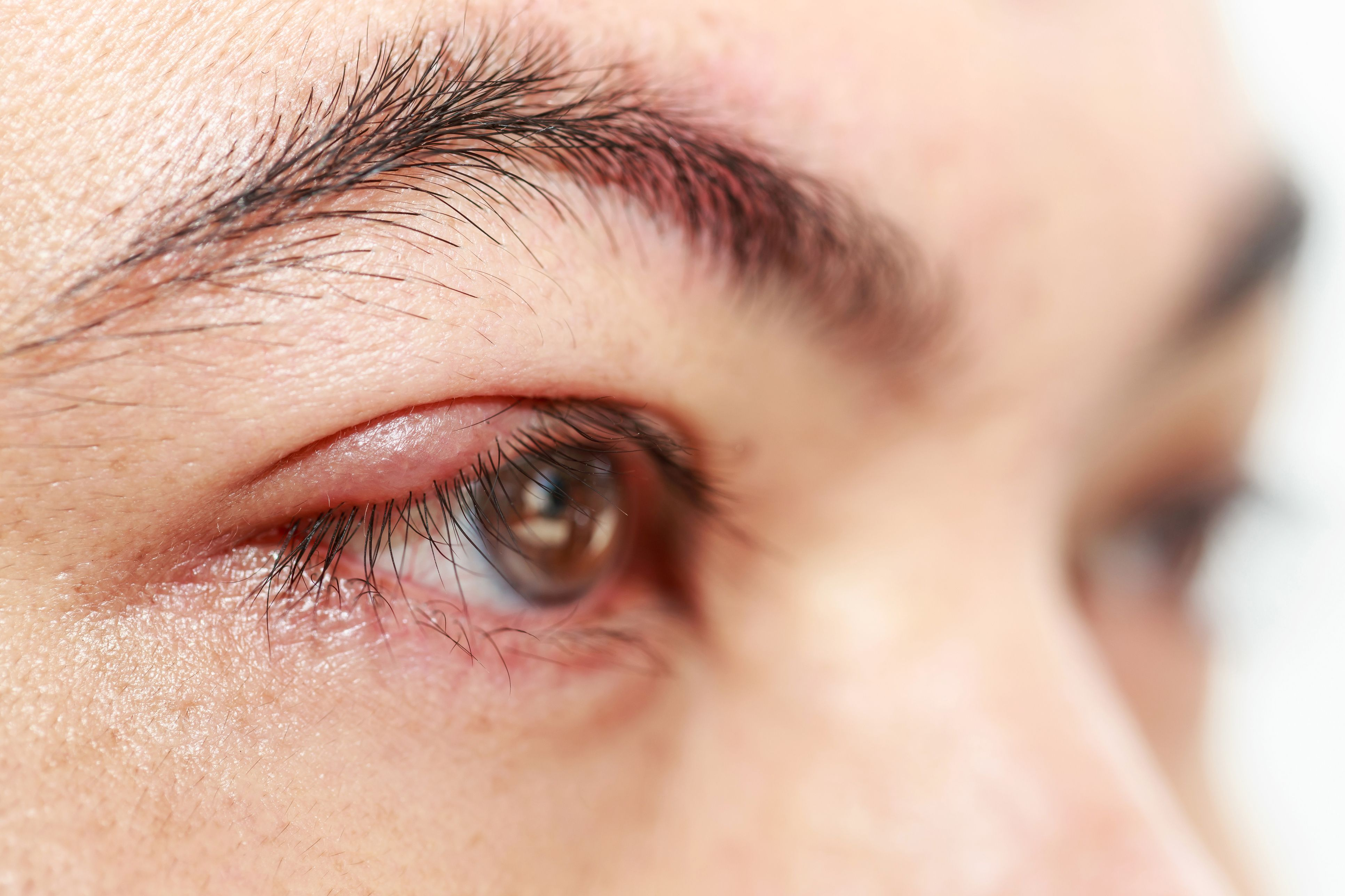 Can You Get Pimples On Eyelids How To Spot And Treat A Stye