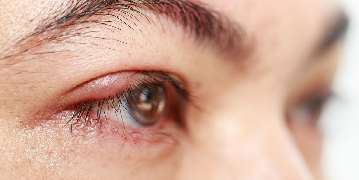 Can You Get Pimples On Eyelids? How To Spot And Treat A Stye