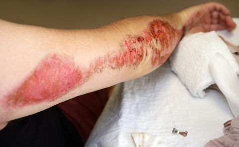 The Right Way to Treat Road Rash So You Don't End Up With Scars