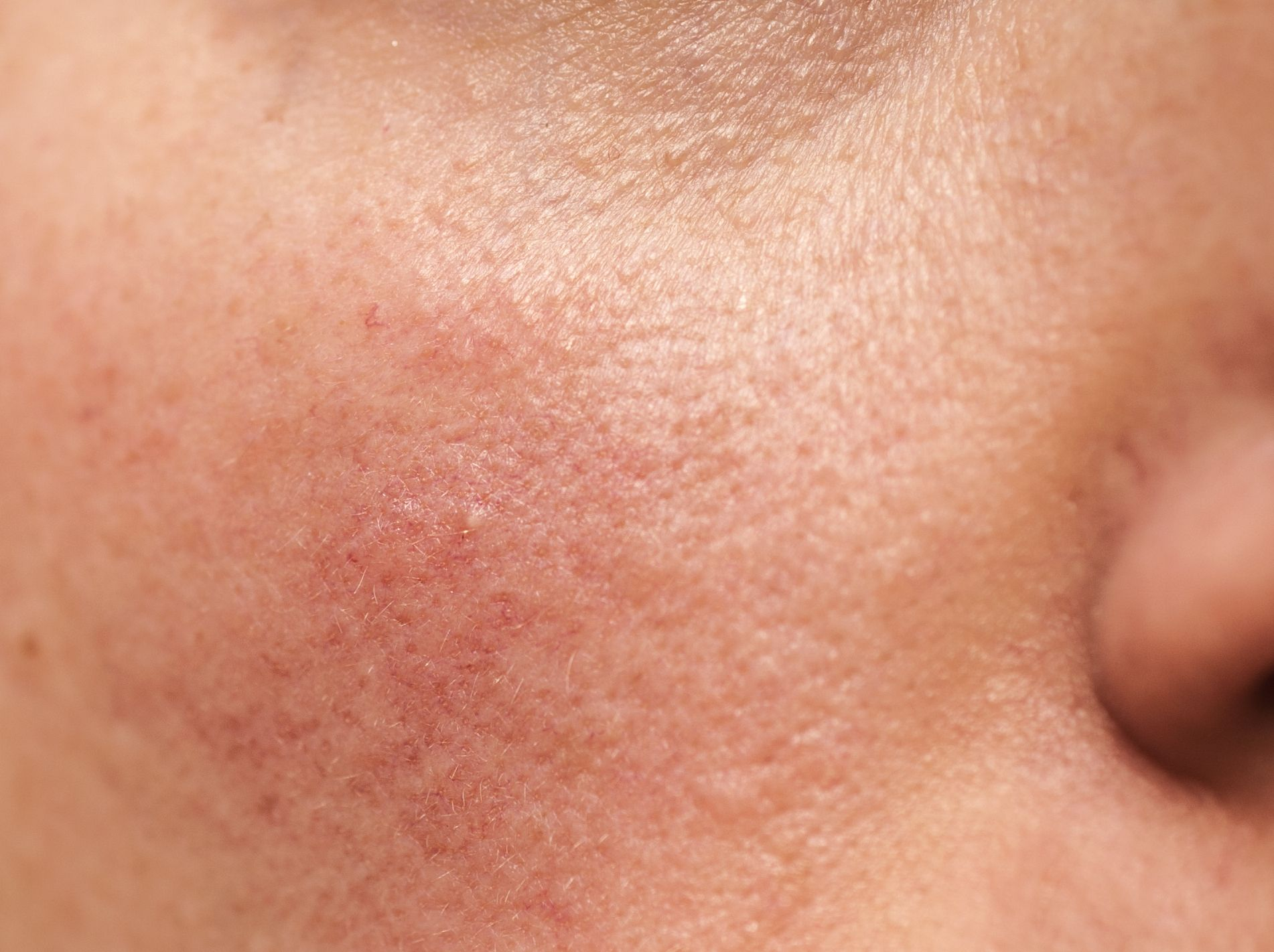 Best Rosacea Treatments According To A Dermatologist Rosacea