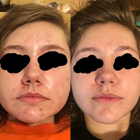 How Rosehip Oil Got Rid Of This Woman S Acne In Only 3 Weeks