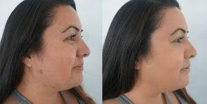 Dominique Lerma scab makeup tutorial