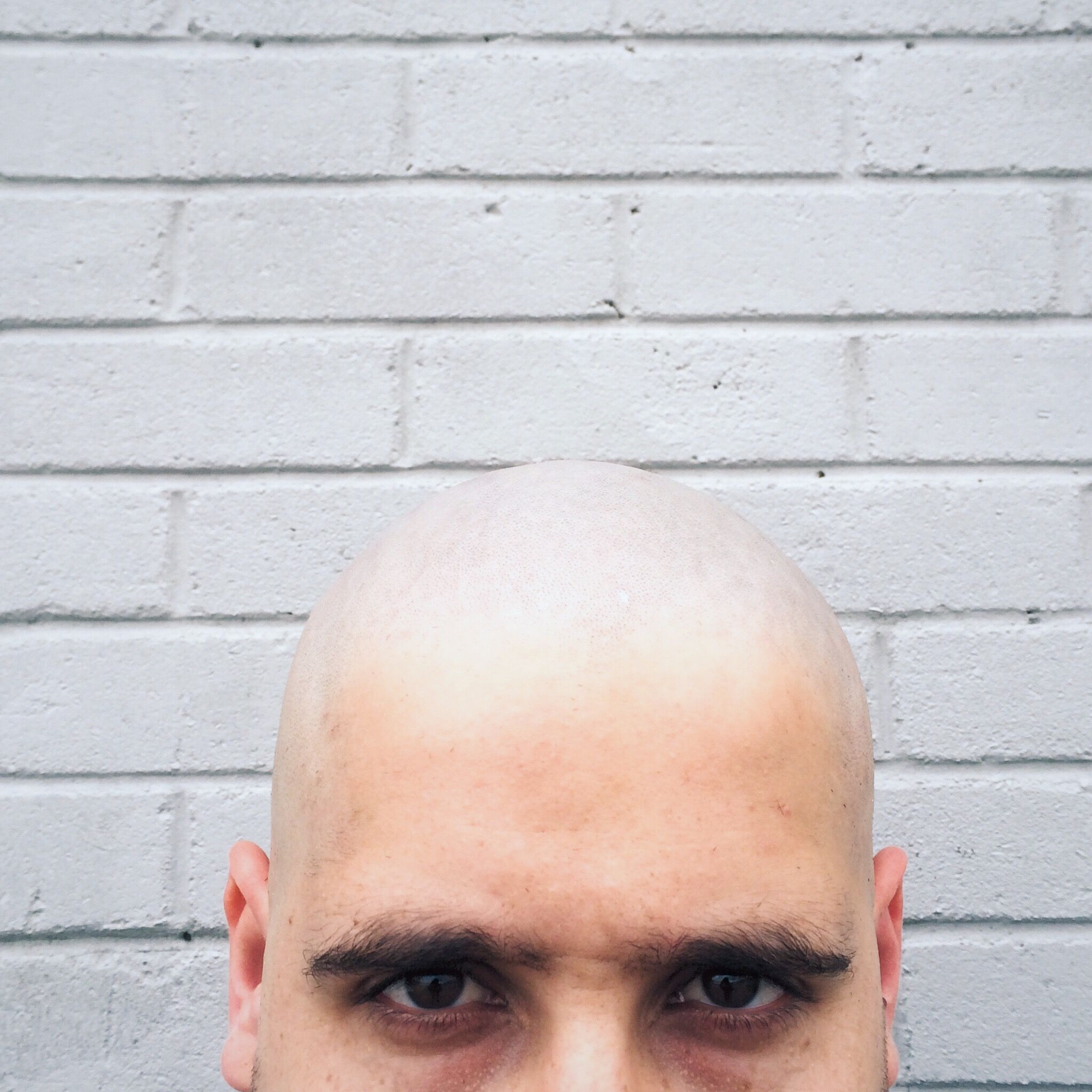 Is scalp micropigmentation the cure for baldness?