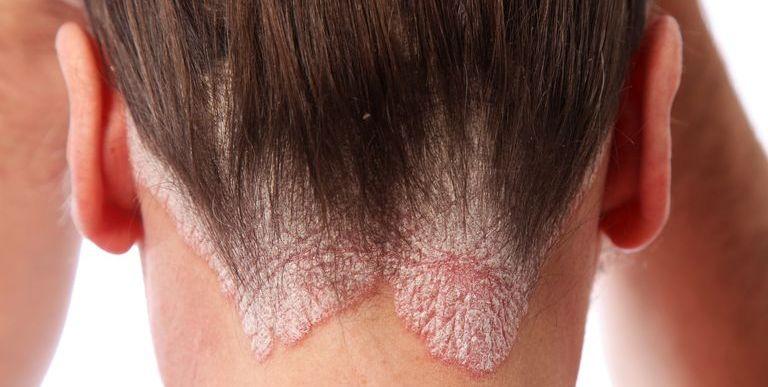 psoriasis in hindi ein bokeck pikkelysömör kezelése