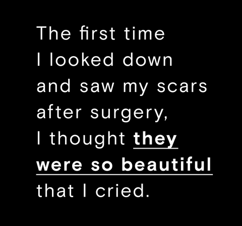 Scar Quotes 5 Women Share What Its Like Living With Scars