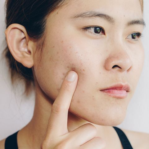 problems with acne and scar on the female skin