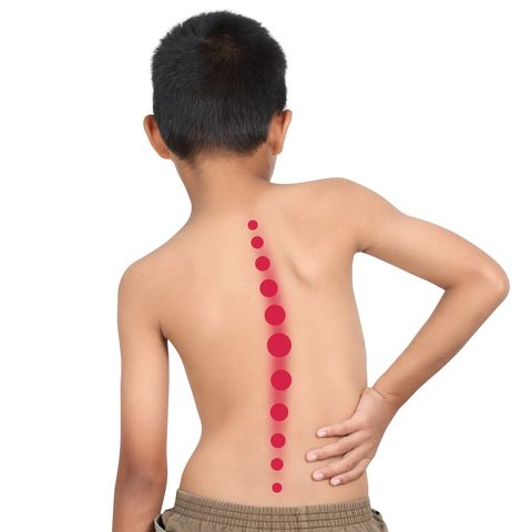 Image result for What Are The Causes of Scoliosis?