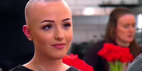Alopecia sufferer Eve praised by viewers for removing wig on First Dates