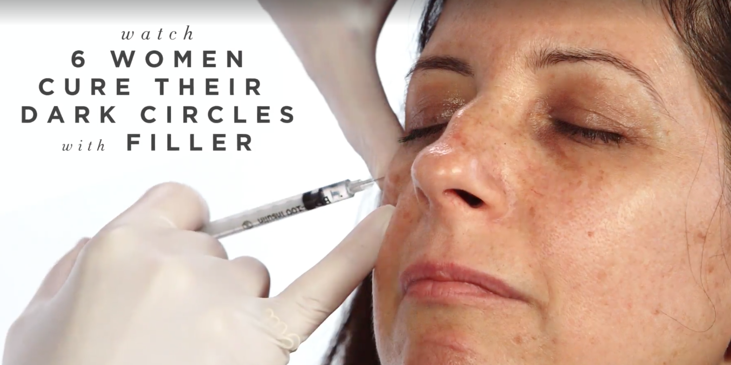 Filler for Dark Under Eye Circles - Get Rid of Under-eye