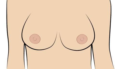 nipple types