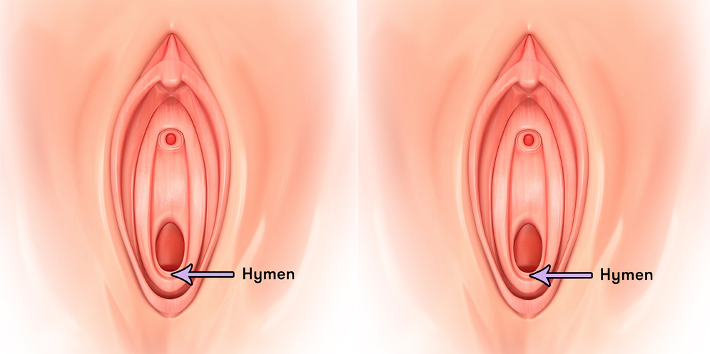 How to pop a girls hymen