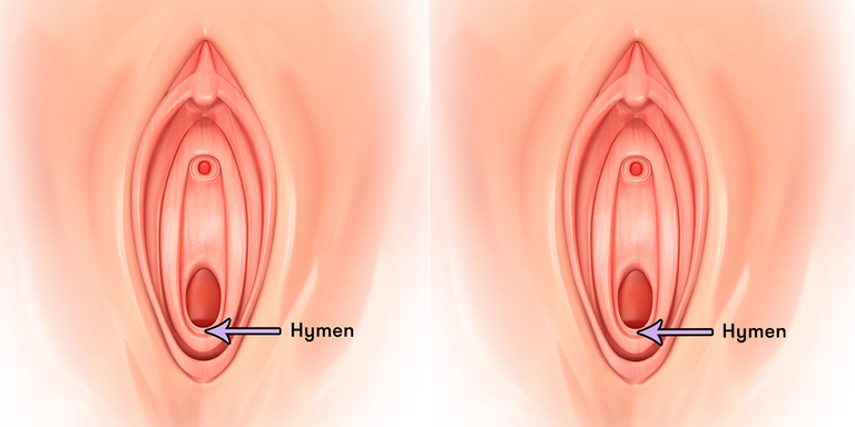 6 Things You Never Knew About Your Hymen-3652