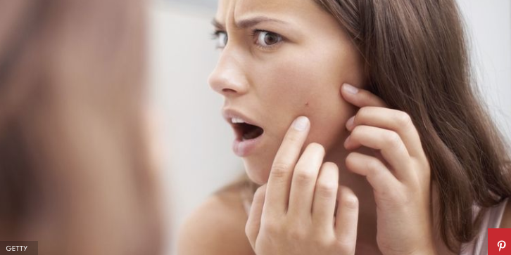 How to get rid of acne fast best acne treatment options best ways to get rid of whiteheads ccuart Image collections