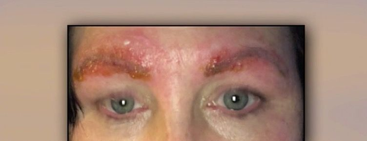 A Discount Microblading Session Gave This Woman a Horrifying Infection—In Her Eyebrows