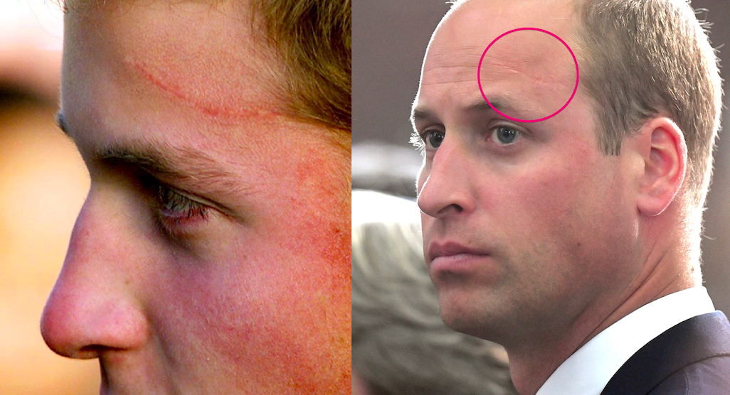 How Did Prince William Get His Forehead Scar Prince William Has A
