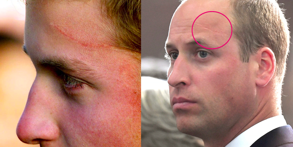 how did prince william get his forehead scar prince william has a harry potter scar on his forehead how did prince william get his forehead