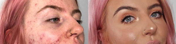 This Foundation Is Going Viral After Cystic Acne Sufferer Shares Her Amazing Before And After Pics