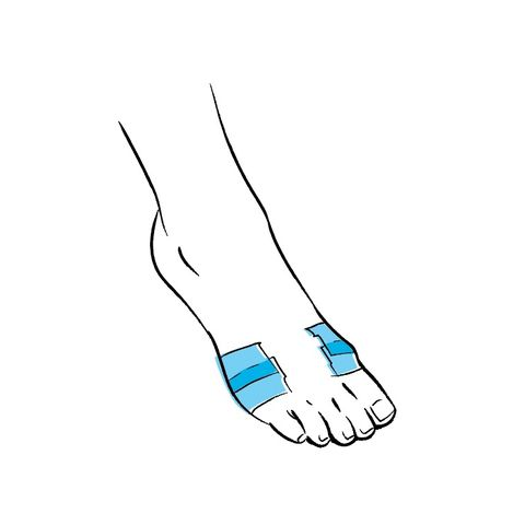 taping the ball of the foot to stop blister when running