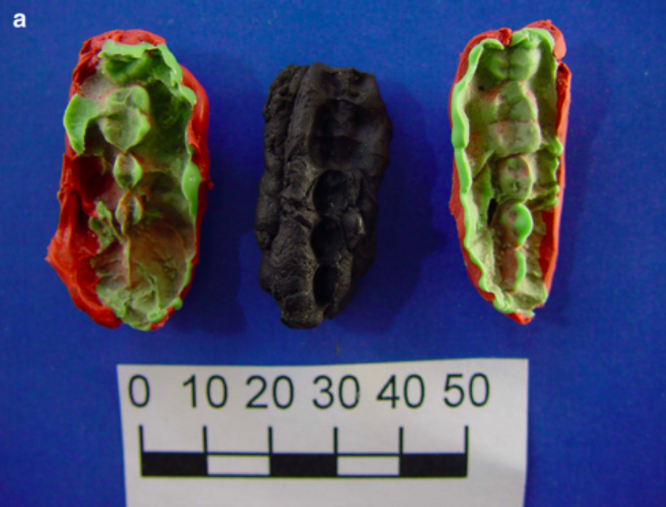 Turns Out You Can Learn a Lot from 10,000-Year-Old Chewing Gum
