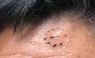 Watch Dr  Pimple Popper Melt a Buttery, 20-Year-Old Forehead