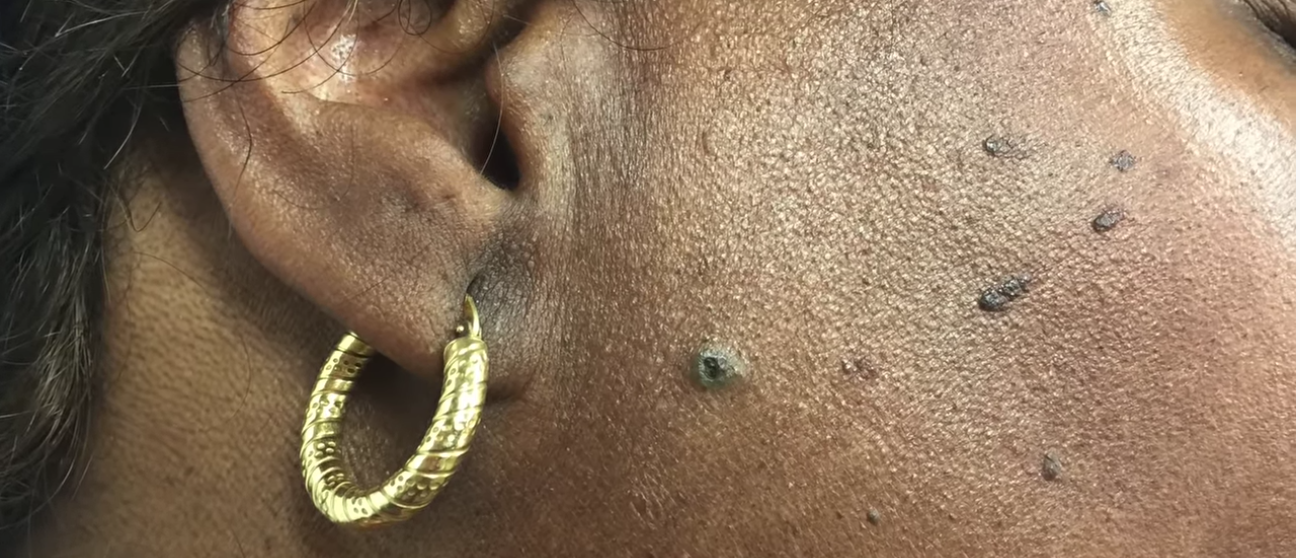 Dr Pimple Popper Pops Sticky Dilated Pore Of Winer On Instagram