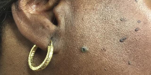 Dr Pimple Popper Pops Sticky Dilated Pore Of Winer On Instagram