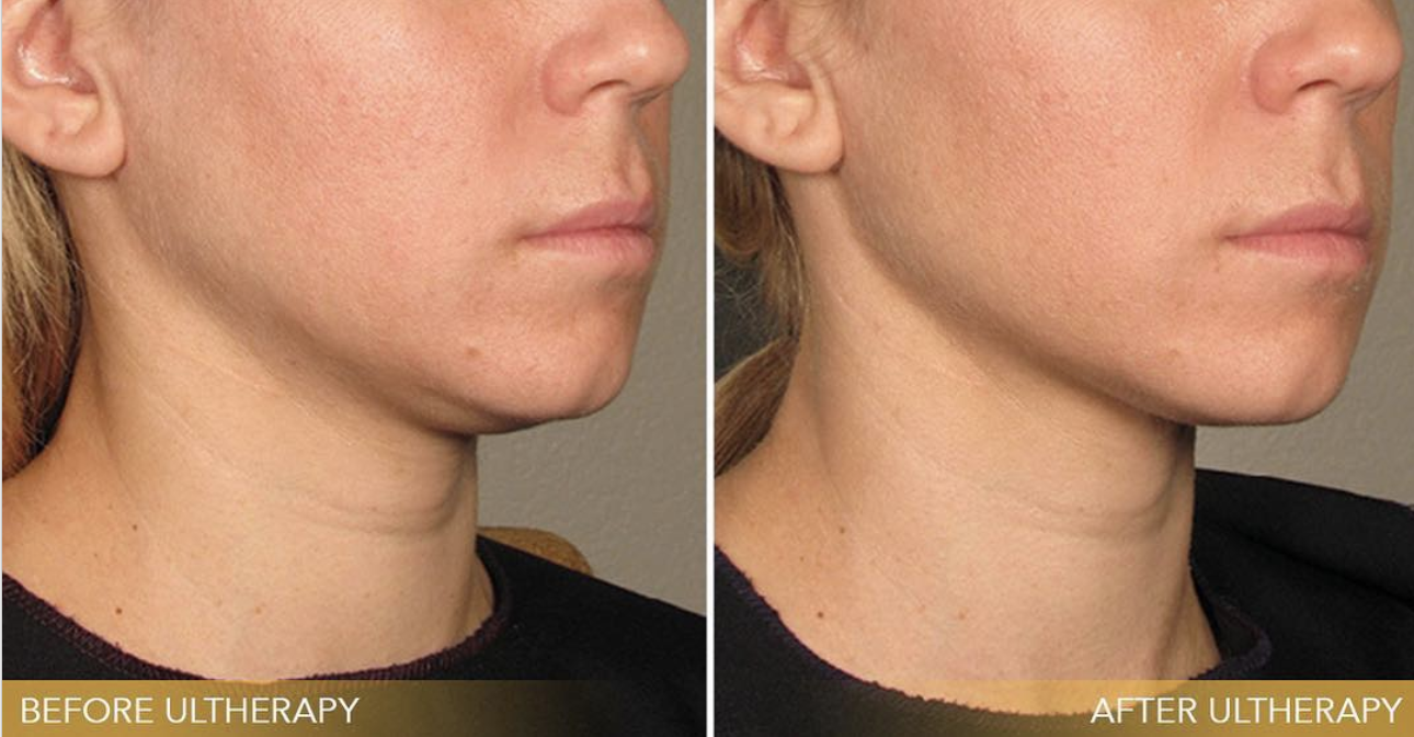 What Is Ultherapy and How Much Does It Cost? - Skin Tightening