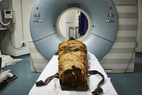 Computed tomography, Medical imaging, Medical equipment, Medical, Radiology,