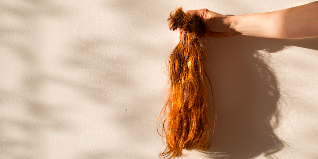 Female Hair Loss Six Women On What Causes Hair Loss And Their Experience