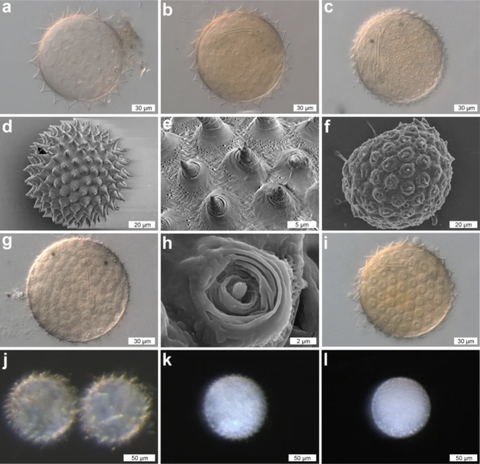 various dactylobiotus ovimutans eggs are shown, each displaying its own custom morphology