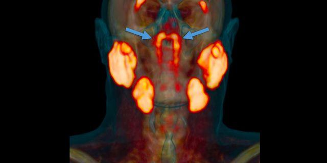 tubarial salivary glands