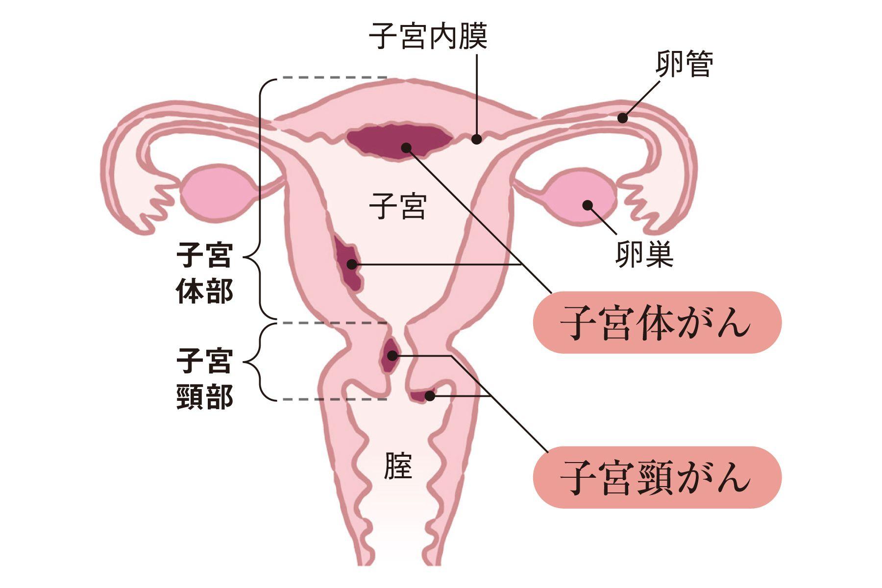 膜 子宮 増殖 症 内