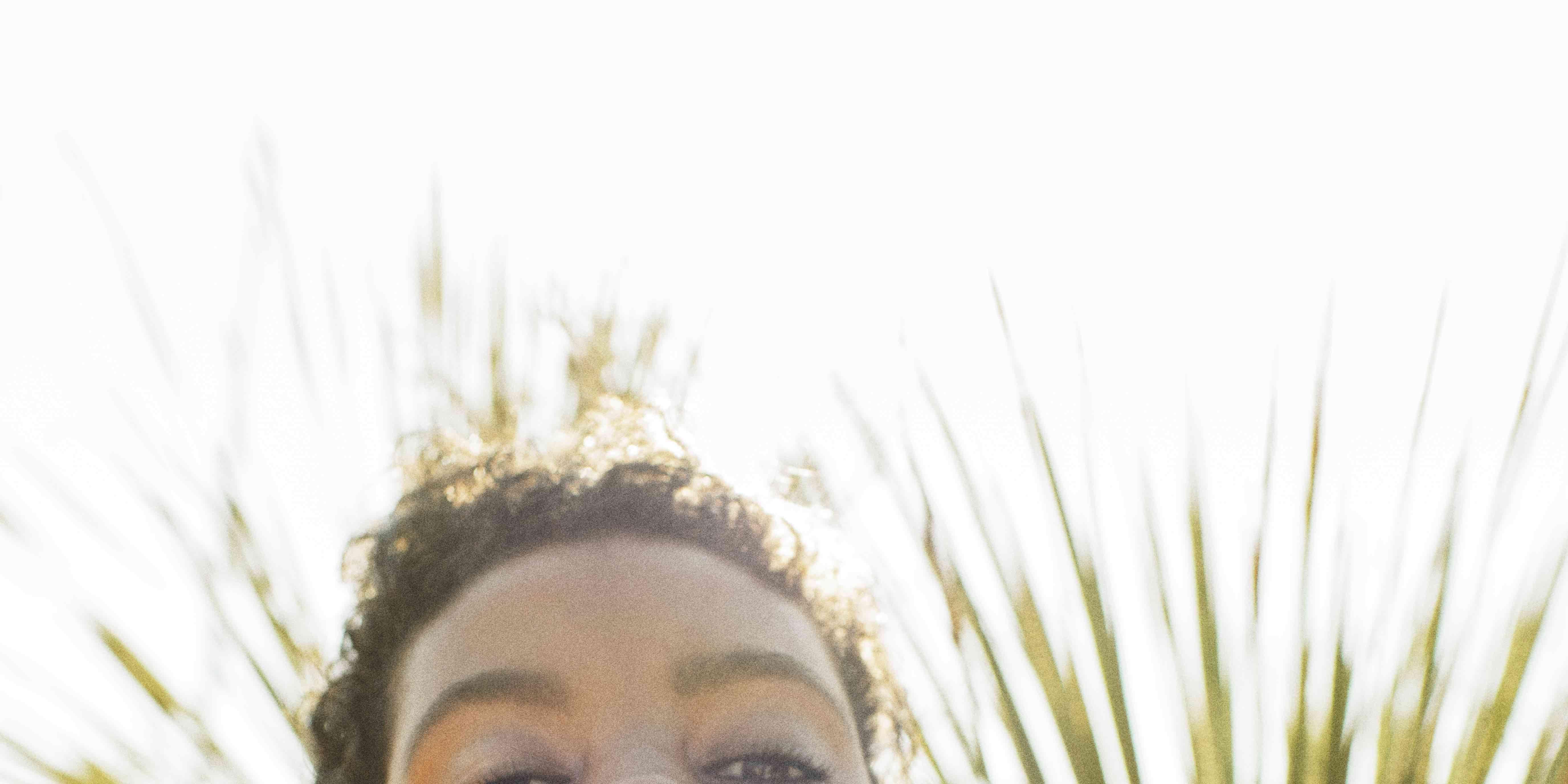 acne-pukkeltjes-huid-zomer