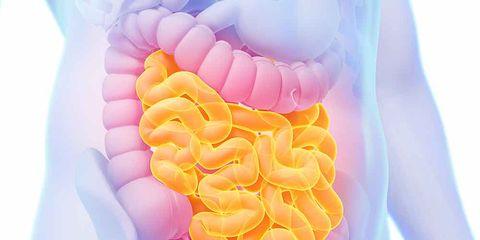chrohn's disease