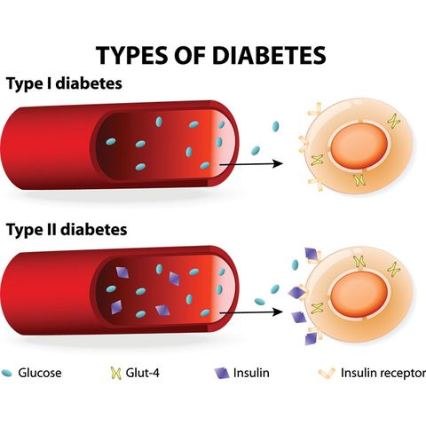 psoriasis and type 2 diabetes