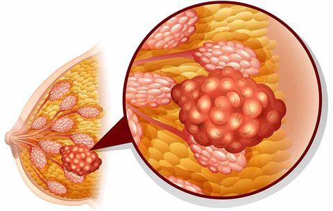 Non-Cancerous Tumors