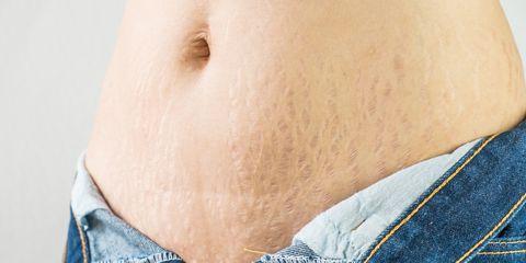 Abdomen, Skin, Navel, Stomach, Trunk, Waist, Organ, Human body, Close-up, Jeans,