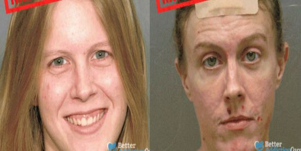 Shocking images show the horrific effects of drug abuse