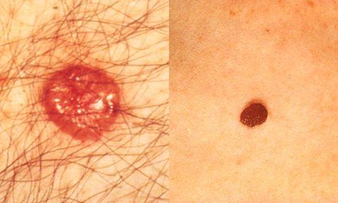skin-cancer-1.jpg