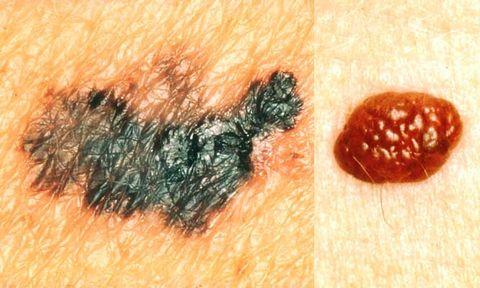 skin-cancer-3.jpg